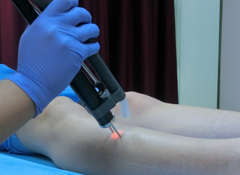 Review: Laser Hair Removal at Elite Plastic & Cosmetic Surgery Group
