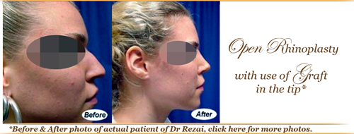 Before and after rhinoplasty elite plastic and cosmetic surgery
