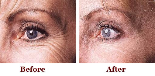 Botox results crows feet