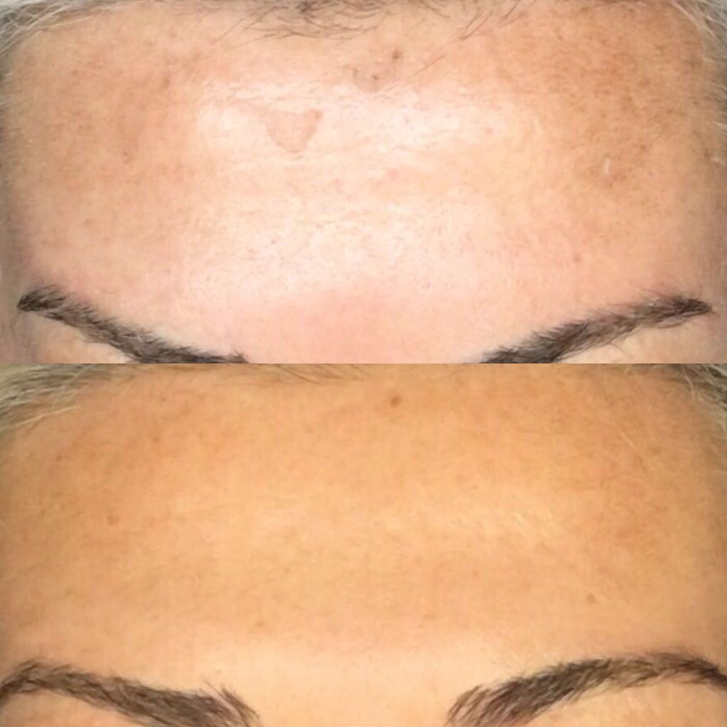 Forehead difference with Perfect Peel