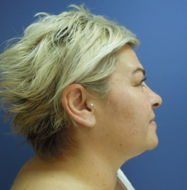 Review: PRP Skin Rejuvenation