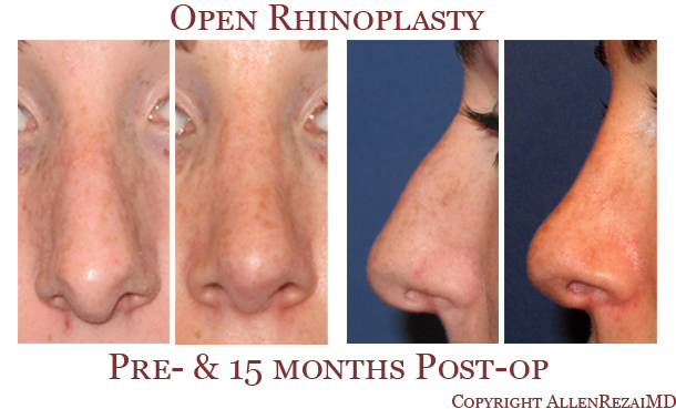 Rhinoplasty elite plastic cosmetic surgery 5