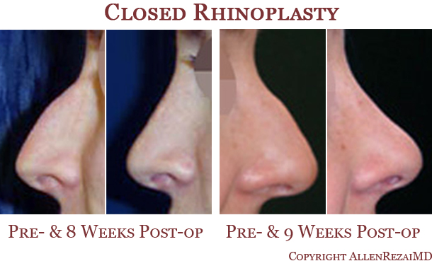 Closed rhinoplasty elite plastic cosmetic surgery