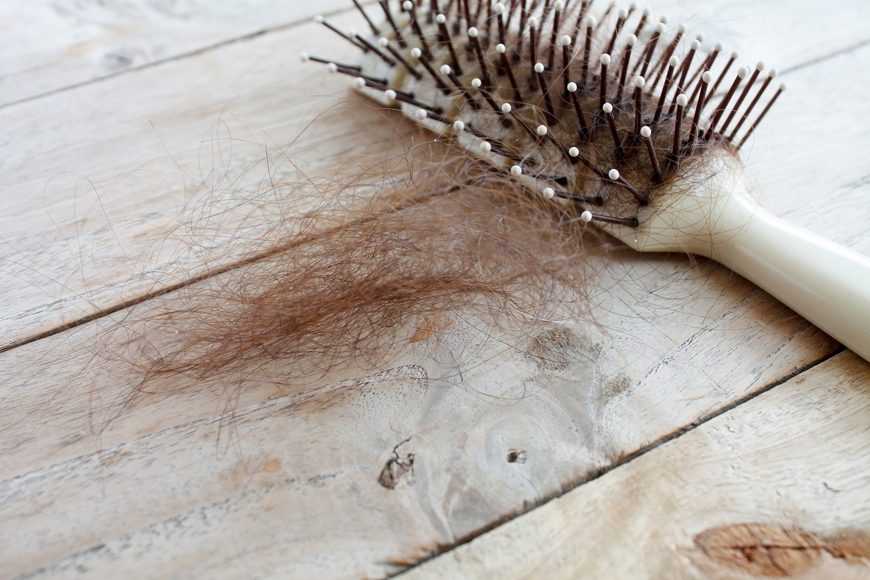 Faikh IVF - hair loss in Dubai causes and therapies