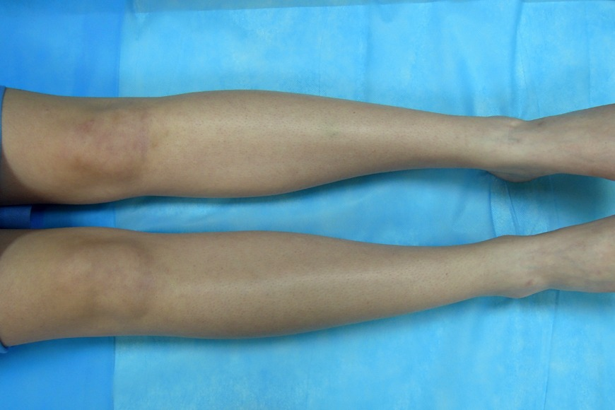 Review: Laser Hair Removal