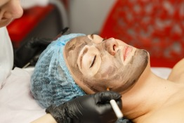 Review: Carbon Laser Peel at Premium Cosmetic Laser Center
