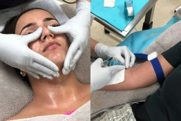 Get Glowing Skin with Glutathione IV and ZO Facials in Kuwait