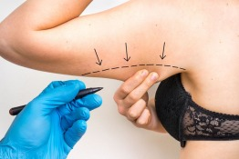 Surgical Arm Lift: Causes, Risks and Treatment in Dubai